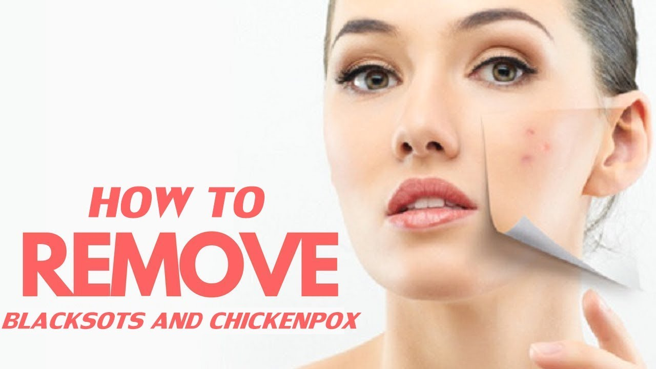 How To Remove The Black Spots After Chickenpox Youtube