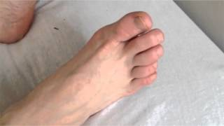 Diffuse Myokymia in the Lower Extremities
