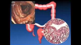 Воспалительные заболеваня толстой кишки 003-2