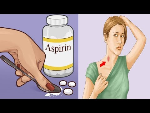 9 Amazing Uses Of Aspirin That You've Probably Never Heard Of! from YouTube · Duration:  3 minutes 40 seconds