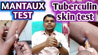 Mantoux test | TST | PPD | Tuberculin skin test | Diagnosis of TB.