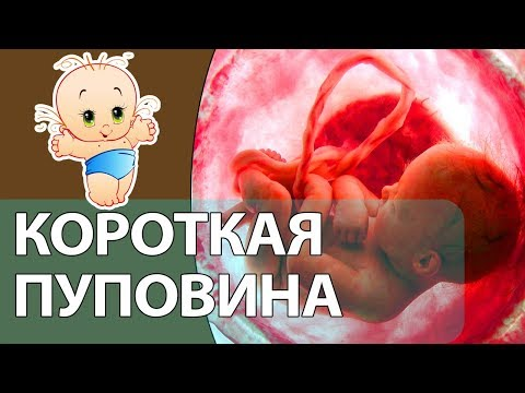 Короткая пуповина при беременности