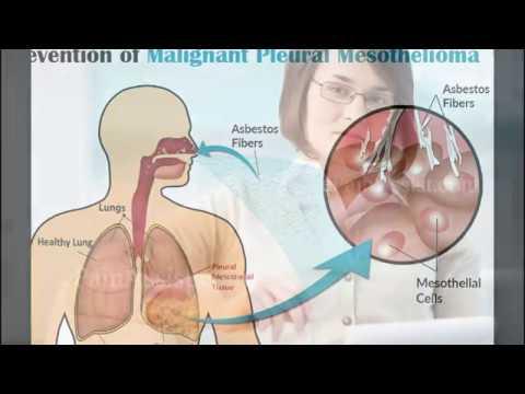 mesothelioma-treatment-mesothelioma-|-new-mesothelioma-treatment-options