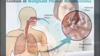 mesothelioma treatment MESOTHELIOMA | New Mesothelioma Treatment Options
