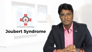"Dr.Khaleel Ahmed discusses ""Joubert Syndrome"""