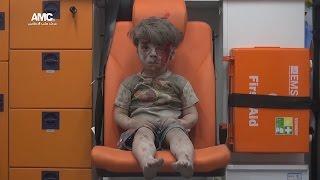 Как выглядят выжившие после бомбардировок в Алеппо