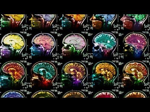 Вот что может быть с вашим мозгом, если вы начнете бегать хотя бы 2 раза в неделю