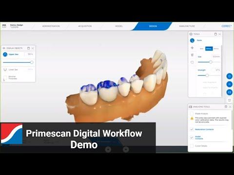 primescan-digital-workflow-and-software-demo