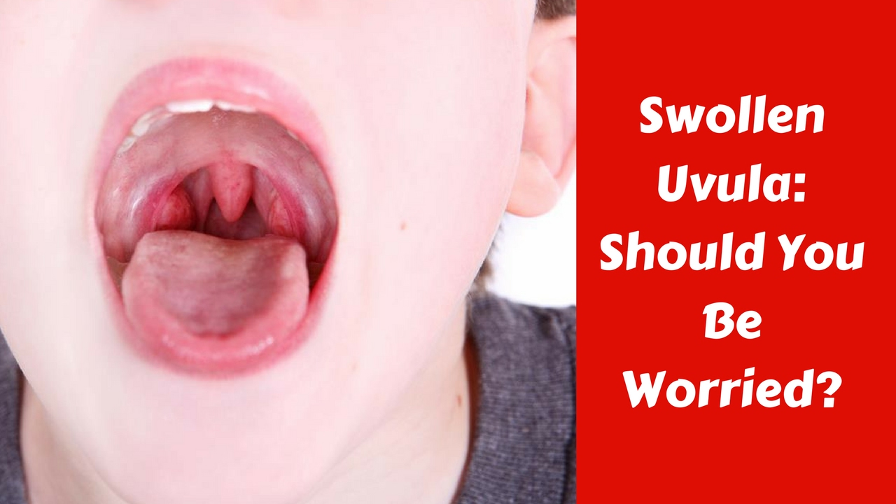 Swollen Uvula - Should you be worried? - YouTube
