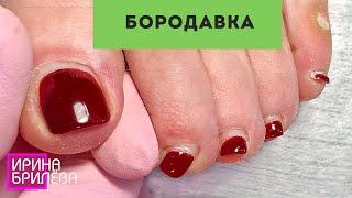 ПЕДИКЮР 🌸 Избавляемся от БОРОДАВКИ НА СТОПЕ 🌸 Ирина Брилёва
