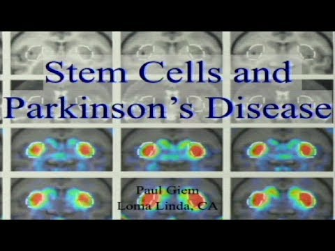 Stem Cells and Parkinson's Disease 10-28-2017 by Paul Giem
