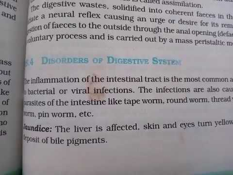 Disorders of digestive system. Helpful to NEET and class 12 students.