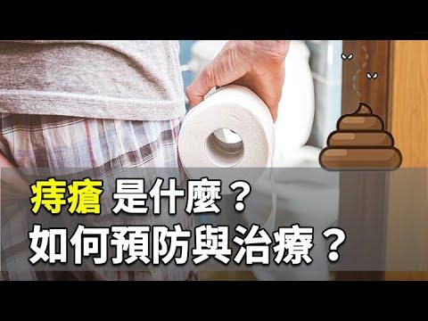 痔瘡是什麼?中醫如何治療與預防? 施丞修 醫師 461 中醫知識CooL - YouTube