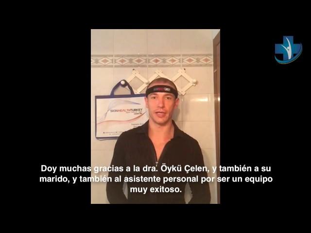 Trasplante Capilar Turquía - Testimonio por Anthony B. - Dra. Oyku Celen / Skin Health Turkey