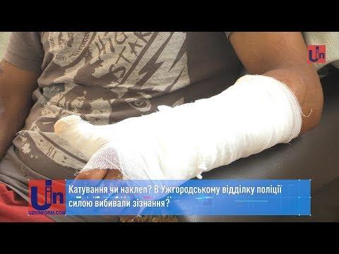Катування чи наклеп? В Ужгородському відділку поліції силою вибивали зізнання?