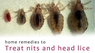 home remedies to treat nits and head lice