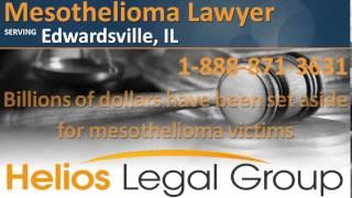Edwardsville Mesothelioma Lawyer & Attorney - Illinois