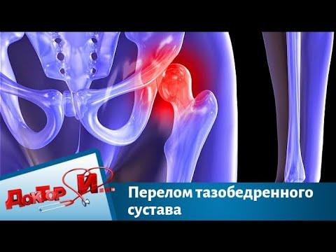 Перелом тазобедренного сустава | Доктор И