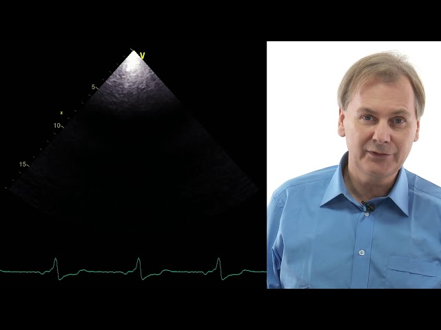 Right heart and pulmonary hypertension