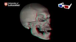 micro-CT Scan of Richard III's Skull 3D (Red - Blue 3D glasses required)
