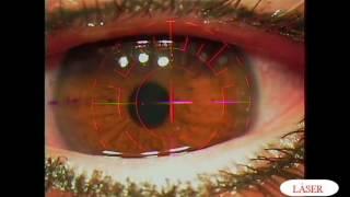 Precio miopia y astigmatismo cirugia laser