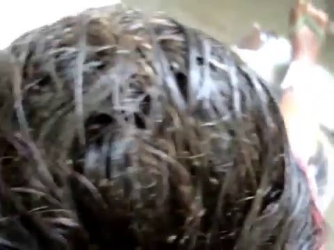 The worst case of lice in the world