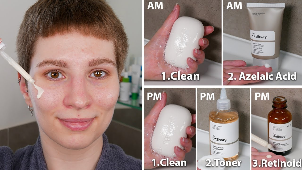 The Ordinary Regimen for Acne Scars and Textural Irregularities | Full Demonstration