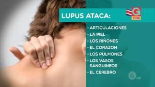 Conozca el lupus, cuando el sistema inmune ataca