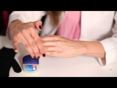 Trick to treat Raw Dry Irritated Hands -Dr. Mir