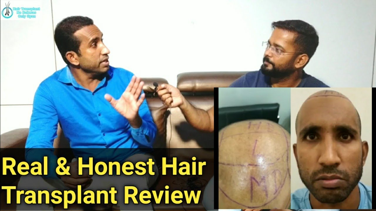 Best Hair Transplant Result in Delhi NCR || How to Grow Hair