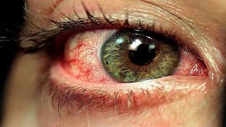 Macular degeneration: A stem cell treatment proved to be effective for this disease.