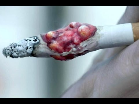 Download STOP PUŠENJU!!! STOP SMOKING!!!