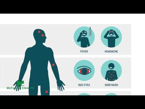 What do I need to know about the Zika Virus? Dr. Fulton Explains.