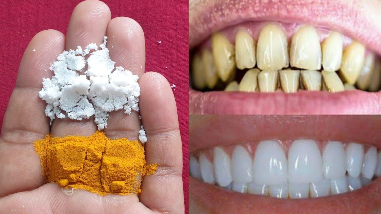 सिर्फ 2 मिनट में गंदे पीले दांतो को मोती की तरह चमका देगा यह नुस्खा Teeth Whitening Home Remedy