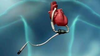 Bryan Heart LVAD Program