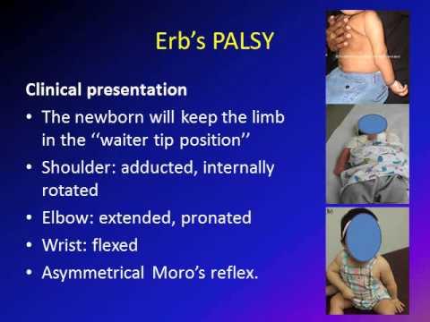 Obstetric Brachial Plexus Palsy (OBPP)/ Erb's Palsy