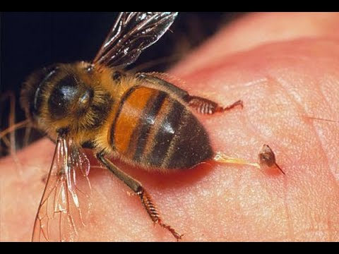 وفاة امرأة خلال علاجها بلسع النحل  - 10:23-2018 / 3 / 22
