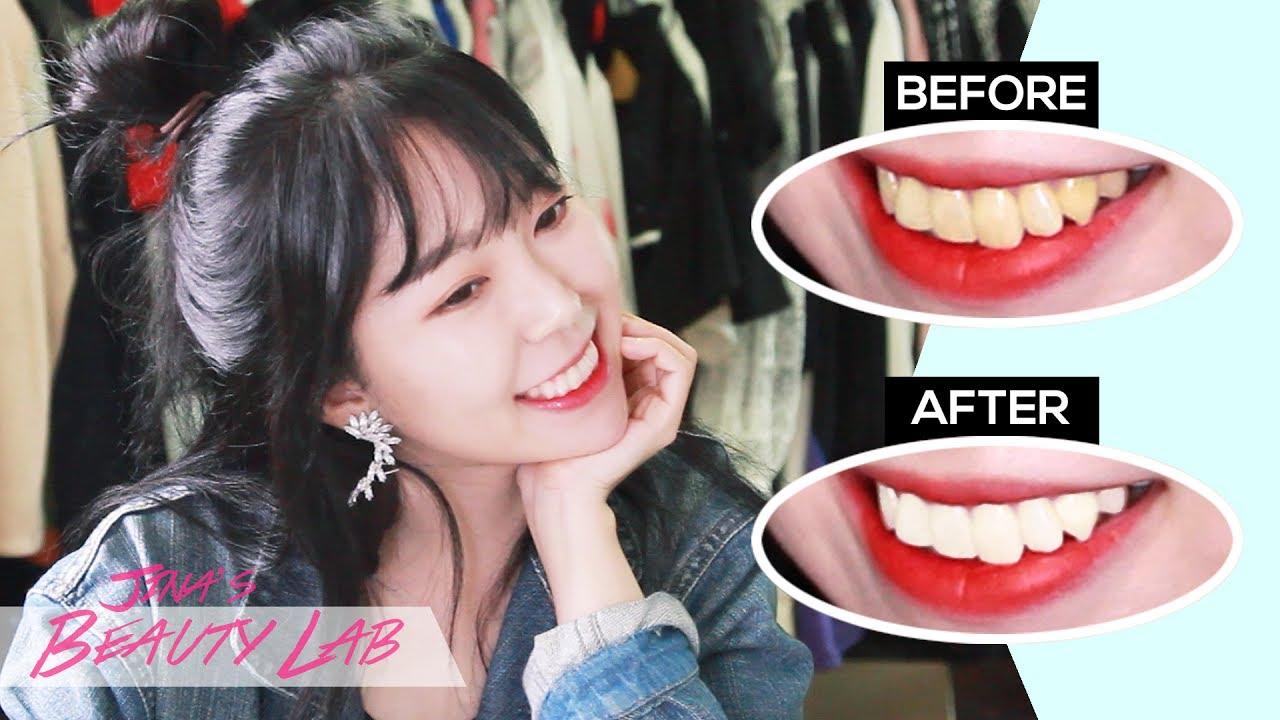 How I Whitened My Teeth At Home Youtube