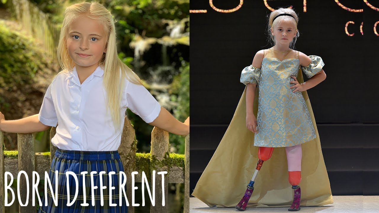 Double Amputee Slays New York & Paris Fashion Weeks | BORN DIFFERENT