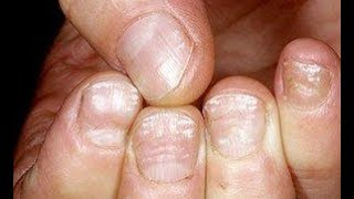 Home Guide: White Stains or Marks on your Fingernails or Toenails!