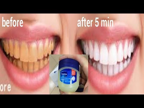 Turn Dirty Yellow Teeth To White At Home With Vaseline In 5 Minute