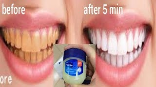 Turn Dirty Yellow Teeth To White At Home With Vaseline In 5 Minute Whiten Yellow Teeth