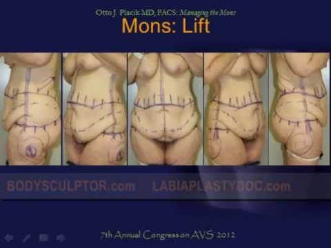 Mons Pubis Reduction & Lift Surgery by Chicago Plastic Surgeon