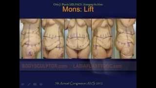 Mons Pubis Reduction & Lift Surgery by Chicago Plastic Surgeon