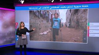 على عكازين وساق واحدة، طفلة سورية تسير 3 كيلومترات يوميا إلى مدرستها