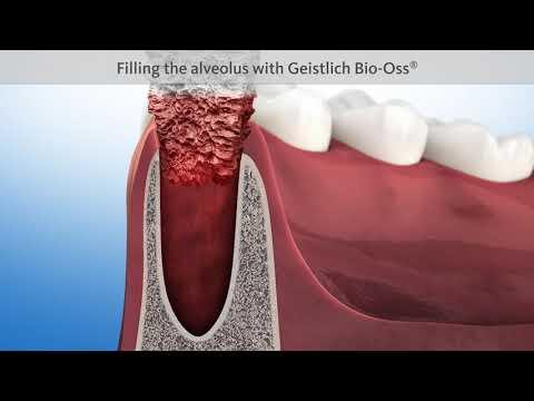 Что делать после удаления зуба? Видео для пациентов