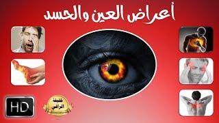 اعراض الإصابة بالعين والحسد ( ادخل لتعرف اذا ما كنت مصابا بها )