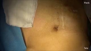 Crohn's disease, ileo colectomy for entero cutaneous fistula