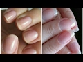 How to grow nails faster || DIY Nail Growth Recipe