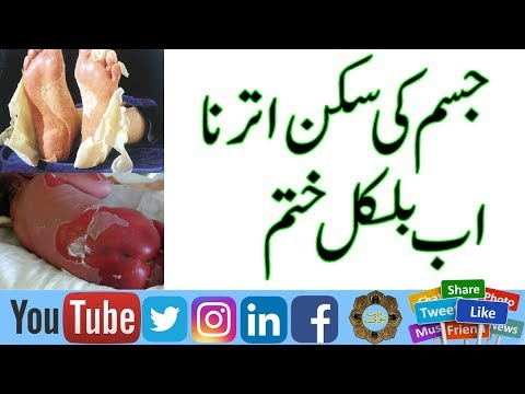 contact dermatitis meaning in urdu